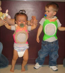 Early Onset Scoliosis