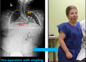 Patient Stories   Scoliosis Research Society