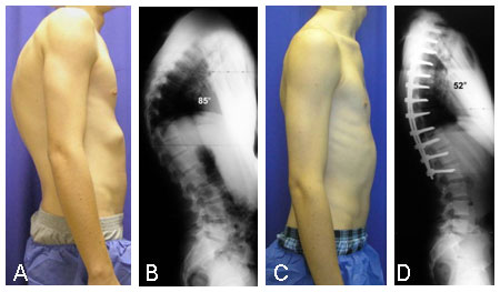 Preoperative photo of patient with severe kyphosis secondary to Scheuermann's disease.