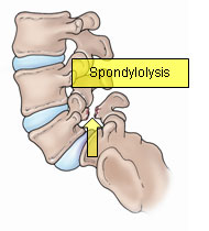 spondylothesis symptoms I am 42 years old and had an l5-s1 fusion after noninvasive interventions failed to relieve my symptoms i had a grade 1 spondylolisthesis resulting from a bilateral.