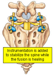 Instrumentation is added to stabilize the spine while the fusion is healing
