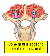Bone graft is added to promote a spinal fusion